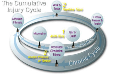 Cumulative Injury circle